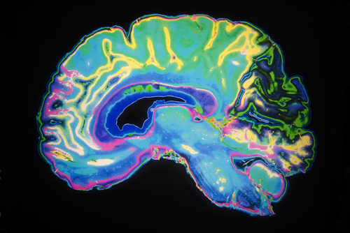 fMRI is Helping Treatments For Dyslexia
