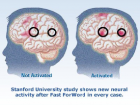 fMRI results of dyslexia treatment at home