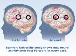 fast for word fMRI brain comparisons