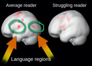 orton gillingham fMRI